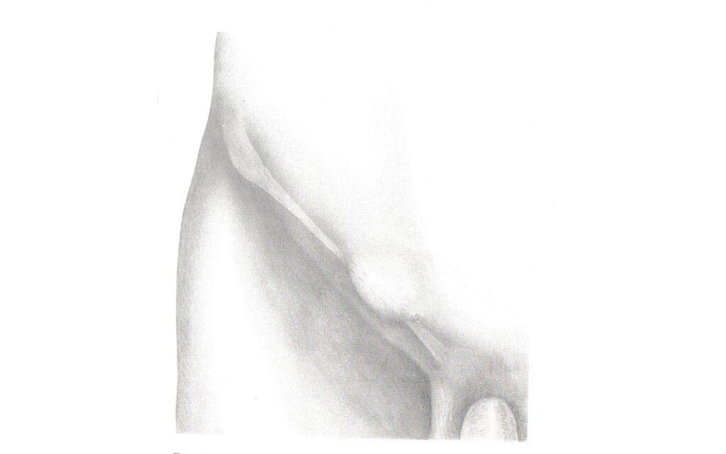 immagine ernia inguinale