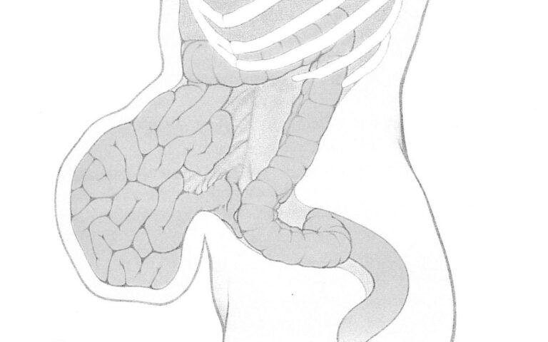 Ernia incisionale o laparocele visione di lato