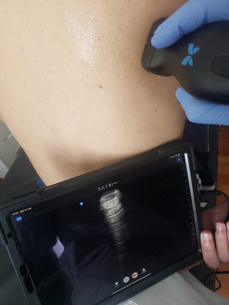 ecografia con sonda ecografica praticata su paziente