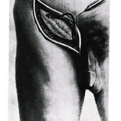 Riparazione ernia inguinale disegno W.Halsted 1893